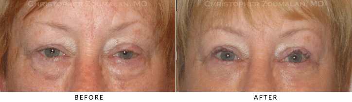 Ptosis Surgery Before & After Photo -  - Patient 72