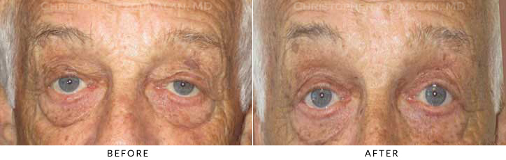 Ptosis Surgery Before & After Photo -  - Patient 73