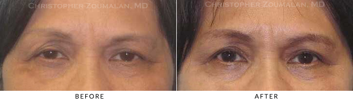 Ptosis Surgery Before & After Photo -  - Patient 7
