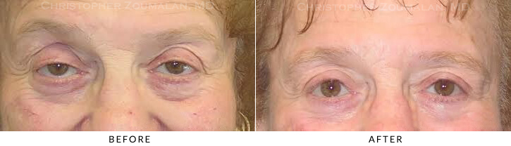 Ptosis Surgery Before & After Photo -  - Patient 8
