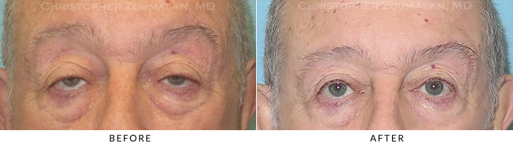 Ptosis Surgery Before & After Photo -  - Patient 9