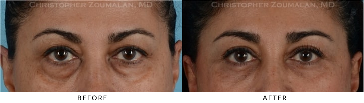 Quad Blepharoplasty Before & After Photo - Patient Seeing Straight - Patient 10A