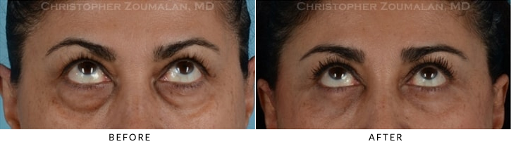 Quad Blepharoplasty Before & After Photo - Patient Seeing Up - Patient 10B