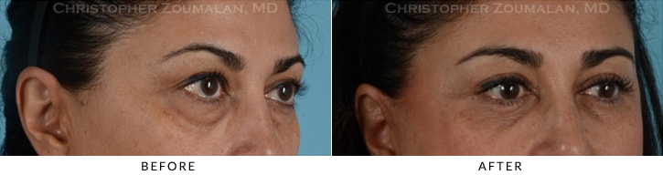 Quad Blepharoplasty Before & After Photo - Patient Seeing Side - Patient 10C