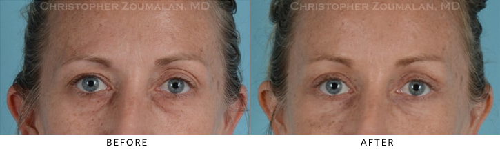 Quad Blepharoplasty Before & After Photo - Patient Seeing Straight - Patient 11A