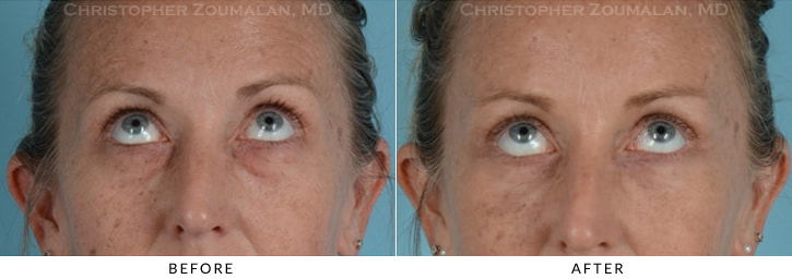 Quad Blepharoplasty Before & After Photo - Patient Seeing Up - Patient 11B