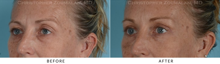 Quad Blepharoplasty Before & After Photo - Patient Seeing Side - Patient 11C
