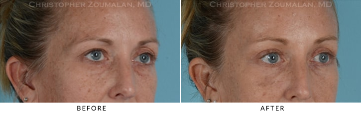 Quad Blepharoplasty Before & After Photo - Patient Seeing Side - Patient 11D