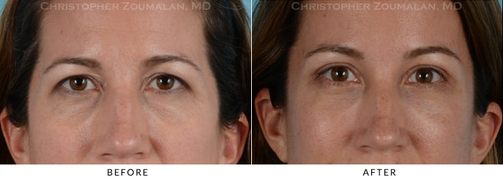 Quad Blepharoplasty Before & After Photo - Patient Seeing Side - Patient 12A