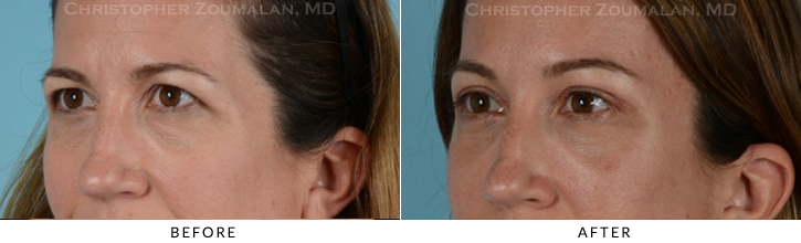 Quad Blepharoplasty Before & After Photo - Patient Seeing Straight - Patient 12B