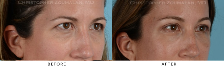 Quad Blepharoplasty Before & After Photo - Patient Seeing Side - Patient 12C
