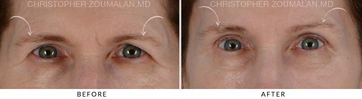 Quad Blepharoplasty Before & After Photo - Patient Seeing Straight - Patient 1A