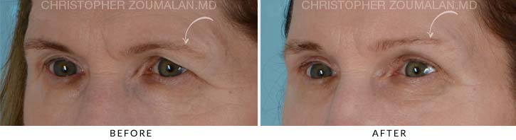 Quad Blepharoplasty Before & After Photo - Patient Seeing Side - Patient 1B