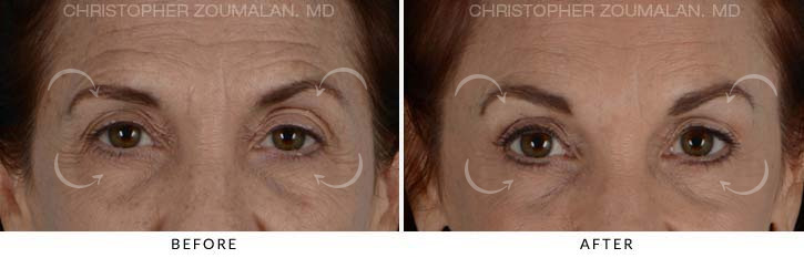 Quad Blepharoplasty Before & After Photo - Patient Seeing Straight - Patient 2A