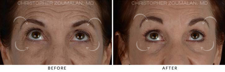 Quad Blepharoplasty Before & After Photo - Patient Seeing Up - Patient 2B