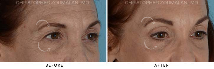 Quad Blepharoplasty Before & After Photo - Patient Seeing Side - Patient 2C