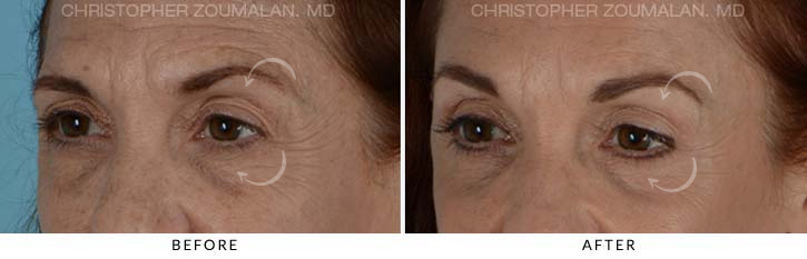Quad Blepharoplasty Before & After Photo - Patient Seeing Side - Patient 2D