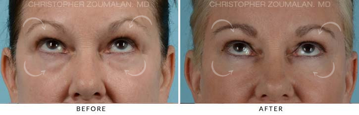 Quad Blepharoplasty Before & After Photo - Patient Seeing Up - Patient 3B