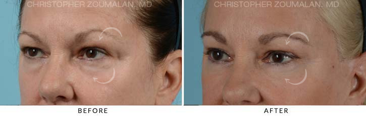 Quad Blepharoplasty Before & After Photo - Patient Seeing Side - Patient 3C