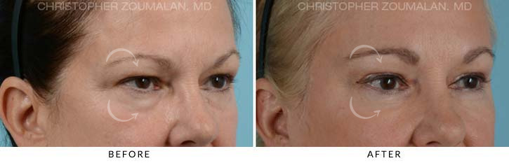 Quad Blepharoplasty Before & After Photo - Patient Seeing Side - Patient 3D