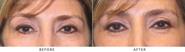 Quad Blepharoplasty Before & After Photo - Patient Seeing Straight - Patient 49A