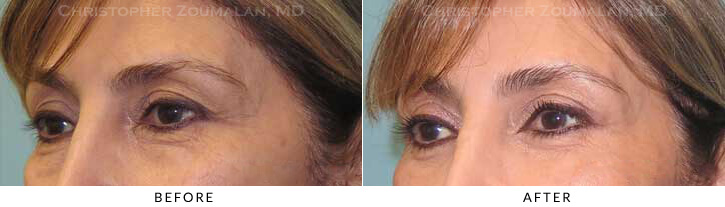 Quad Blepharoplasty Before & After Photo - Patient Seeing Side - Patient 49B