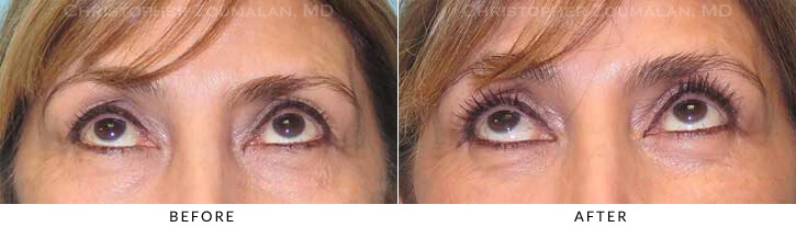 Quad Blepharoplasty Before & After Photo - Patient Seeing Up - Patient 49C