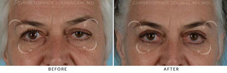 Quad Blepharoplasty Before & After Photo - Patient Seeing Straight - Patient 4A