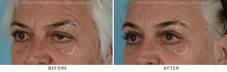 Quad Blepharoplasty Before & After Photo - Patient Seeing Side - Patient 4C