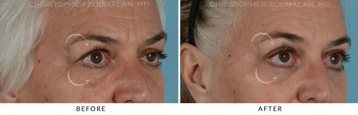 Quad Blepharoplasty Before & After Photo - Patient Seeing Side - Patient 4D