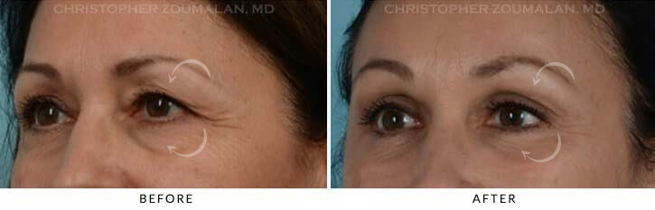 Quad Blepharoplasty Before & After Photo - Patient Seeing Side - Patient 5A