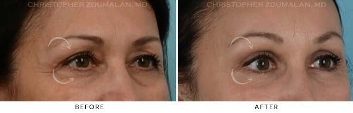 Quad Blepharoplasty Before & After Photo - Patient Seeing Side - Patient 5B