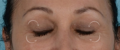 Quad Blepharoplasty Before & After Photo - Patient with Eyes Closed - Patient 5C