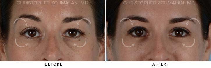 Quad Blepharoplasty Before & After Photo - Patient Seeing Straight - Patient 6A