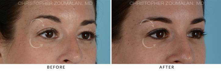 Quad Blepharoplasty Before & After Photo - Patient Seeing Side - Patient 6B