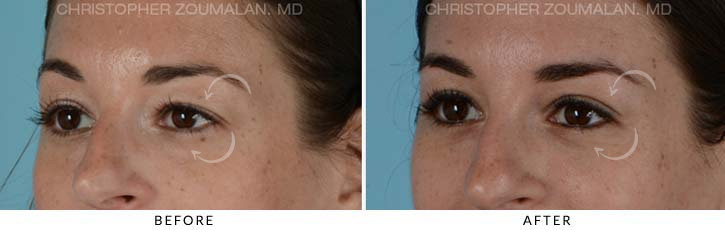 Quad Blepharoplasty Before & After Photo - Patient Seeing side - Patient 6C