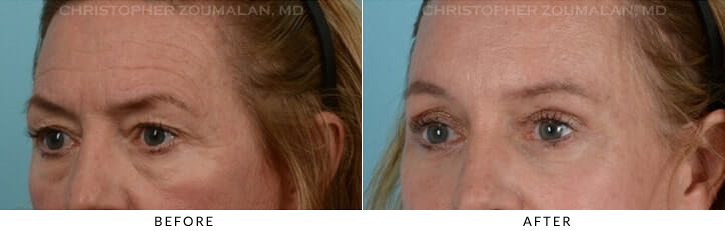 Quad Blepharoplasty Before & After Photo - Patient Seeing Side - Patient 7A