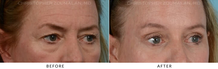 Quad Blepharoplasty Before & After Photo - Patient Seeing Side - Patient 7B