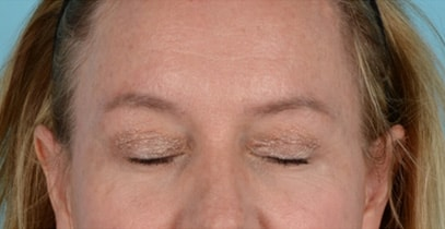 Quad Blepharoplasty Before & After Photo - Patient with Eyes Closed - Patient 7C