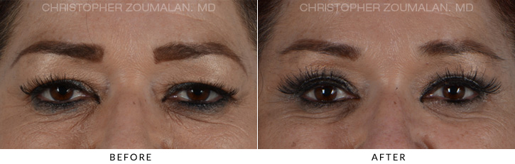 Quad Blepharoplasty Before & After Photo - Patient Seeing Straight - Patient 8A