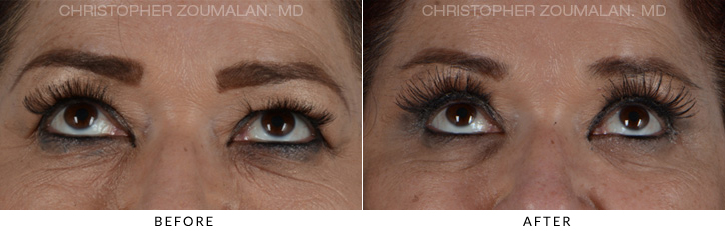 Quad Blepharoplasty Before & After Photo - Patient Seeing Up - Patient 8B