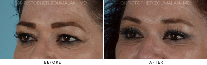 Quad Blepharoplasty Before & After Photo -  - Patient 8C