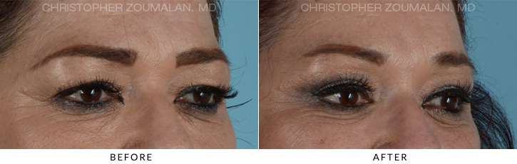 Quad Blepharoplasty Before & After Photo - Patient Seeing Side - Patient 8D