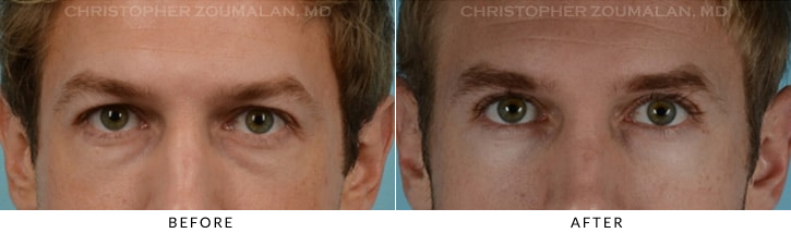 Quad Blepharoplasty Before & After Photo - Patient Seeing Straight - Patient 9A