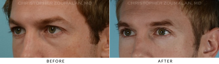 Quad Blepharoplasty Before & After Photo - Patient Seeing Side - Patient 9B