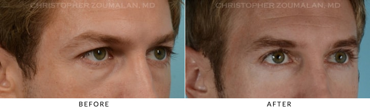 Quad Blepharoplasty Before & After Photo - Patient Seeing Side - Patient 9C