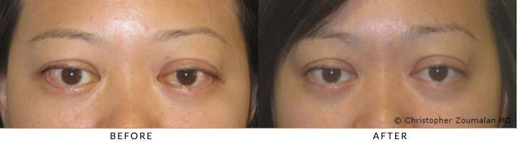 Bilateral lower lid retraction