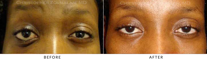 Revisional Eyelid Surgery Before & After Photo -  - Patient 9