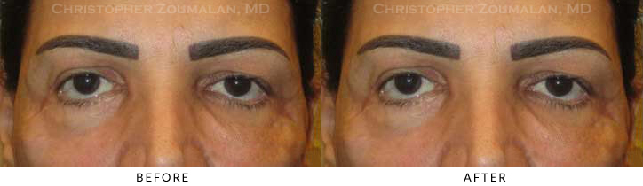 Revisional Eyelid Surgery Before & After Photo -  - Patient 11