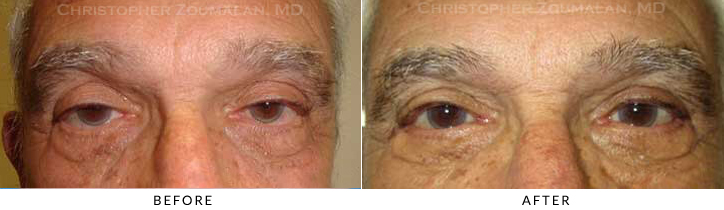 Revisional Eyelid Surgery Before & After Photo -  - Patient 13